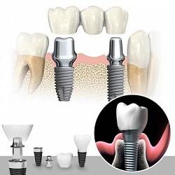 Cắm ghép răng Implant bao nhiêu tiền?