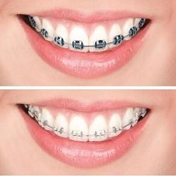 Những phương pháp niềng răng phổ biến nhất hiện nay là gì?
