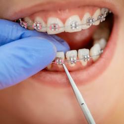 Niềng răng thế nào cho đúng?