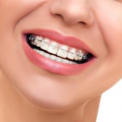 """Những tác dụng """"siêu việt"""" của niềng răng"""