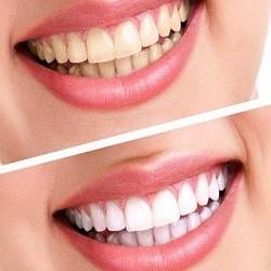 Bọc răng sứ thẩm mỹ có nguy hiểm không?