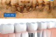 Phục hình răng bị mất xưa và nay   Trồng răng implant