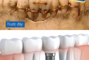 Phục hình răng bị mất xưa và nay | Trồng răng implant