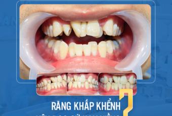 Răng khấp khểnh nên niềng hay bọc sứ?