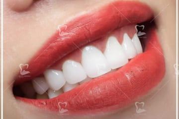 Giới thiệu về dịch vụ bọc sứ Răng toàn sứ Ceramill